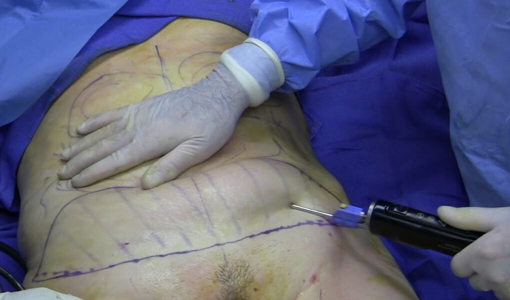 Don't Envy Your Neighbor Anymore; Get Liposuction!